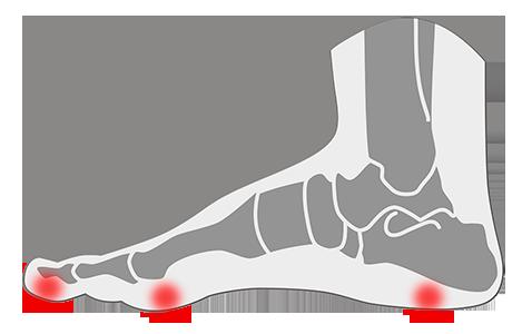 Tratamiento de callos o callosidades en los pies