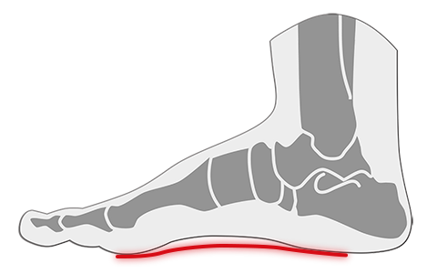 Tratamiento de pies planos