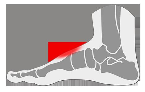 Tendinitis en el pie