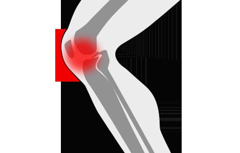 Dolor de rodillas y pies
