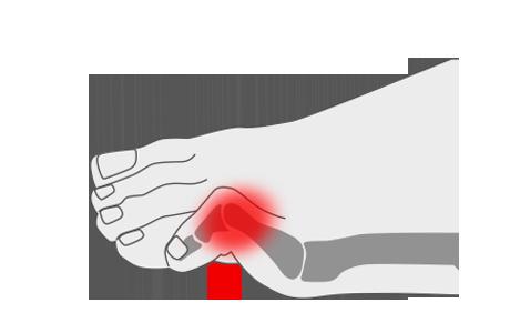 Dedos en garra en los pies