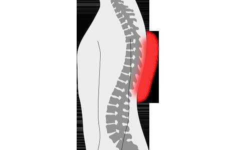 Dolor en la espalda media