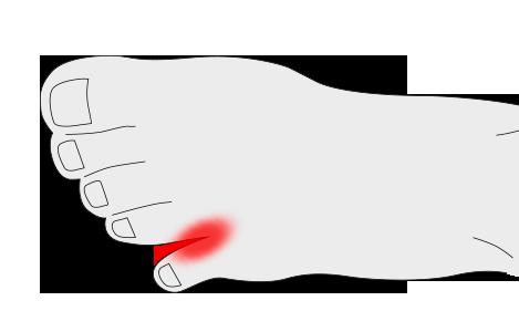 Clinodactilia en los dedos de los pies