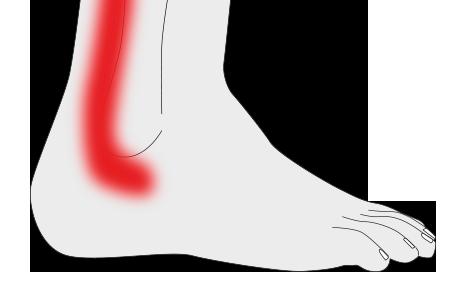 Tendinitis de tobillo