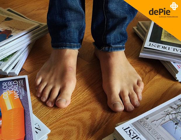 psoriasis en las uñas de los pies