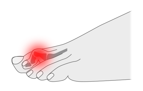 Dedos en martillo