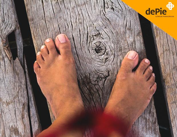 Eczemas en los pies o dishidrosis.