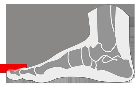 Onicólisis en los pies.